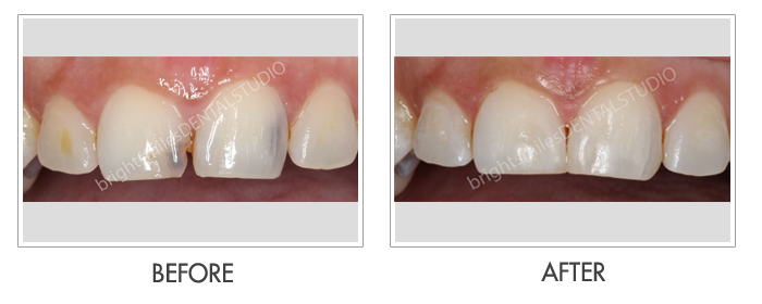 Bright Smiles Dental Studio, Before and after images of Cosmetic Dentistry Case 01
