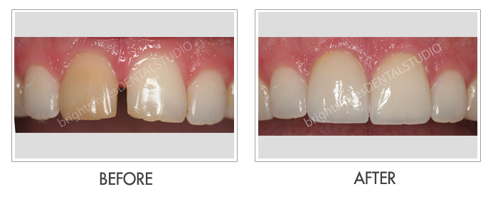 Bright Smiles Dental Studio, Before and after images of Cosmetic Dentistry Case 02