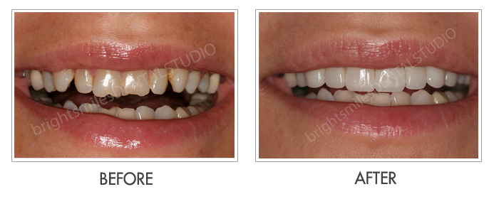 Bright Smiles Dental Studio, Before and after images of Cosmetic Dentistry Case 03