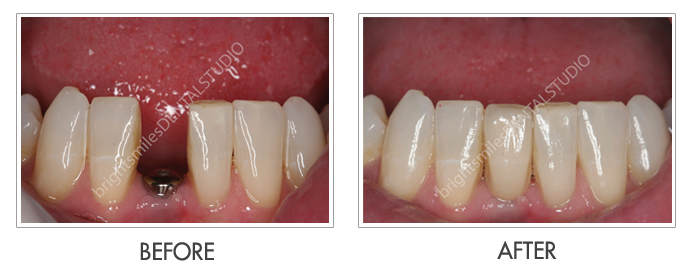 Bright Smiles Dental Studio, Before and after images of Dental Implant Case 01