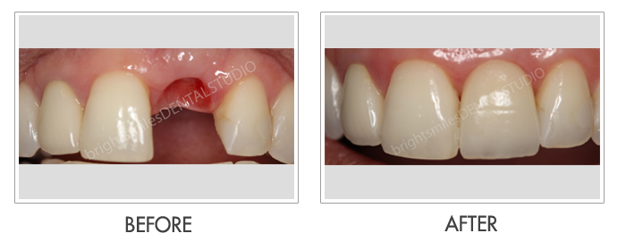 Bright Smiles Dental Studio, Before and after images of Dental Implant Case 02