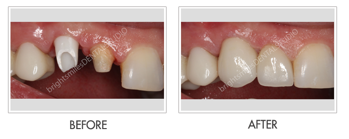 Bright Smiles Dental Studio, Before and after images of Dental Implant Case 03