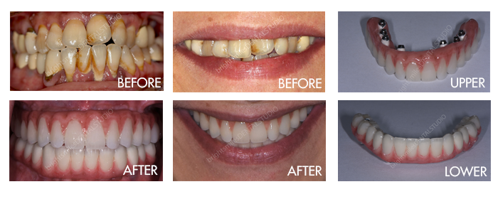 Bright Smiles Dental Studio, Dental Implant Before and After For a Person