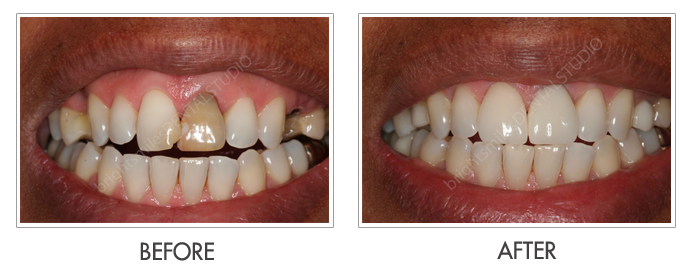 Bright Smiles Dental Studio, Before and after images of Cosmetic Dentistry Case 04
