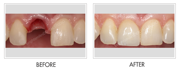 Dr. Carlos Garcia, Bright Smiles Dental Studio Image Of Bright Smiles Dental Studio, Before and after images of Dental Implant Case 04