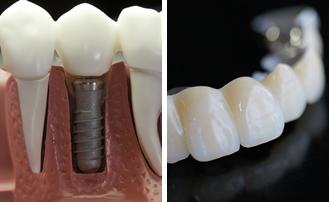 Dr. Carlos Garcia, Bright Smiles Dental Studio Image Of Implants and Dentures