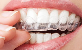 Dr. Carlos Garcia, Bright Smiles Dental Studio Image Of Does Invisalign Work?