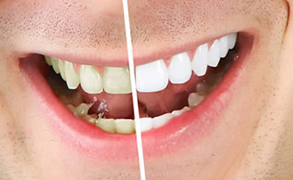 Dr. Carlos Garcia, Bright Smiles Dental Studio Image Of How Does Teeth Whitening Work?