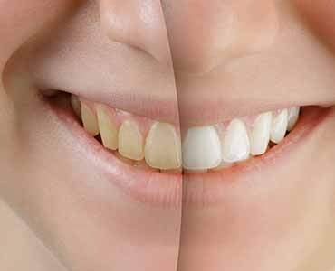 Dr. Carlos Garcia, Bright Smiles Dental Studio Image Of Teeth WHitening