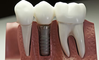 Dr. Carlos Garcia, Bright Smiles Dental Studio Image Of What Is the Minimum Age to Get Dental Implants?