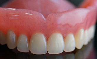 Dr. Carlos Garcia, Bright Smiles Dental Studio Image Of Why Are My Dentures Becoming Uncomfortable When They Used to Feel Great