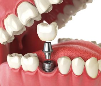 Teeth Implants from Dentist in Glendale CA Area