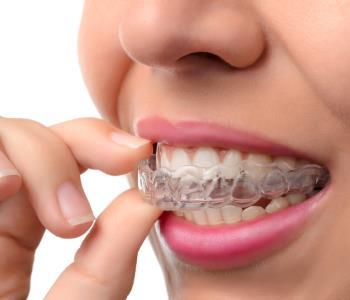 Transparent DentalBraces from Dentist in Glendale CA Area