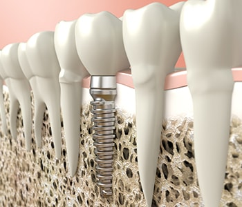 Tooth Implant Surgery in CA