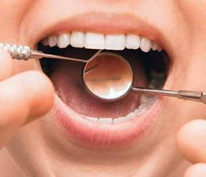 Tooth Fillings are available at Bright Smiles Dental Studio.