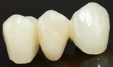 Dr. Carlos Garcia, Bright Smiles Dental Studio Image Of Dental Bridges