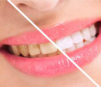 Dr. Carlos Garcia urges Montrose, CA patients to use caution with DIY teeth whitening.