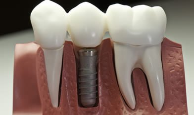 Dr. Carlos Garcia, Bright Smiles Dental Studio Image Of Dental Implant