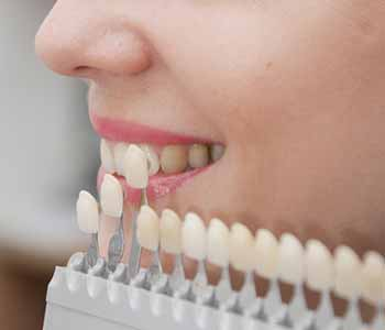 Dentist near Montrose, CA offers aesthetic services such as tooth-colored filings