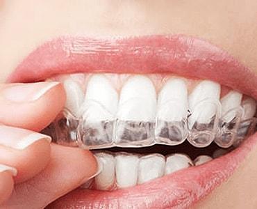 Dr. Carlos Garcia, Bright Smiles Dental Studio Image Of Does Clear Aligner Work?