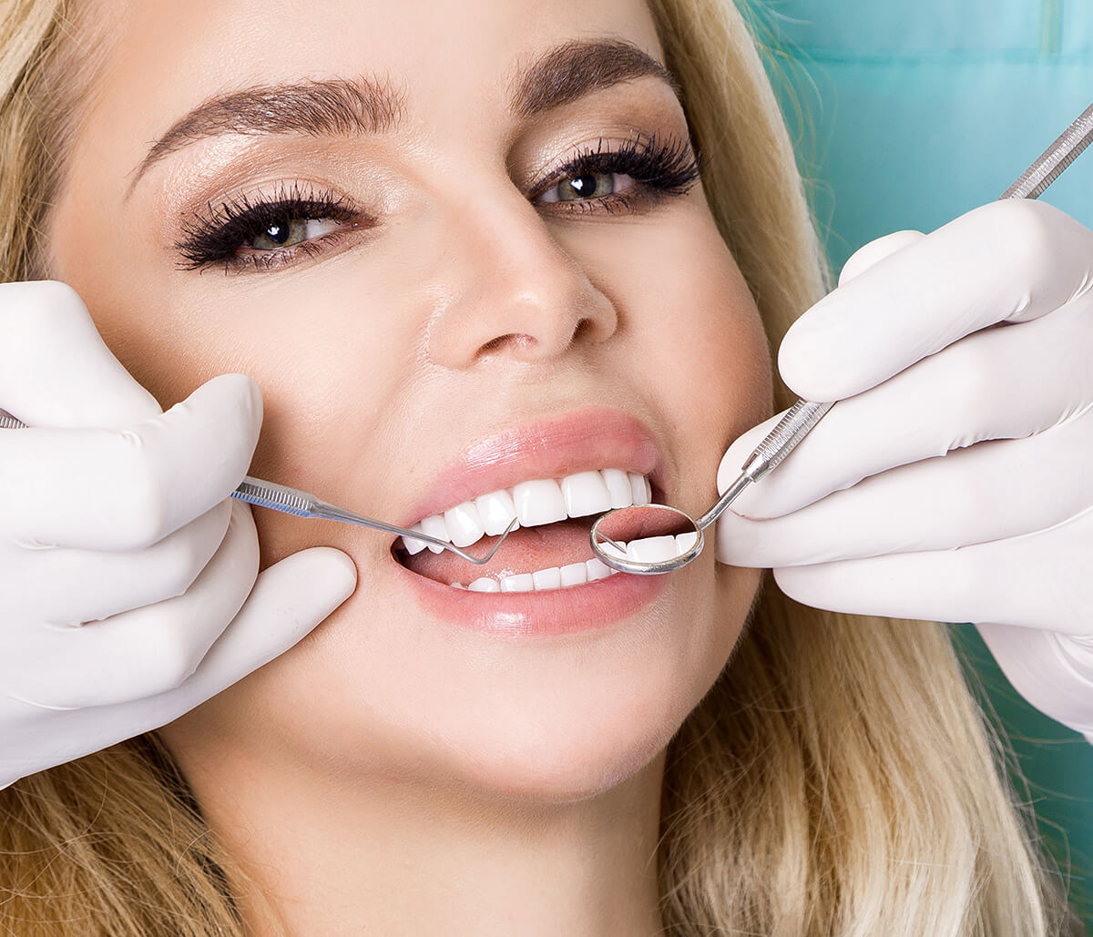 Teeth Cleaning Dental Care at Bright Smiles Dental Studio in Glendale CA Area